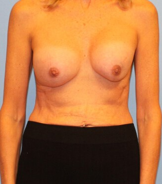 Breast surgery complications New York City