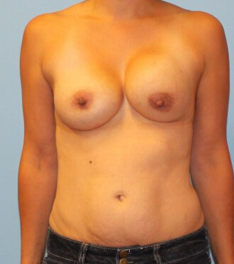 Capsular contracture treatment Westchester County