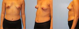 Tubular breast correction New York City