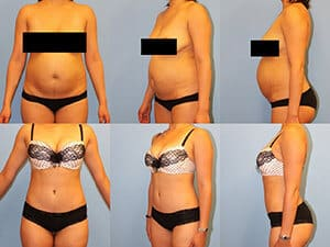 Tummy tuck patient before & after