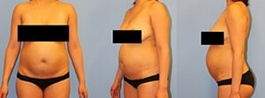 Abdominoplasty Westchester County