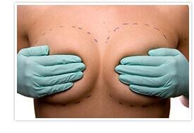 Breast implants in New York City
