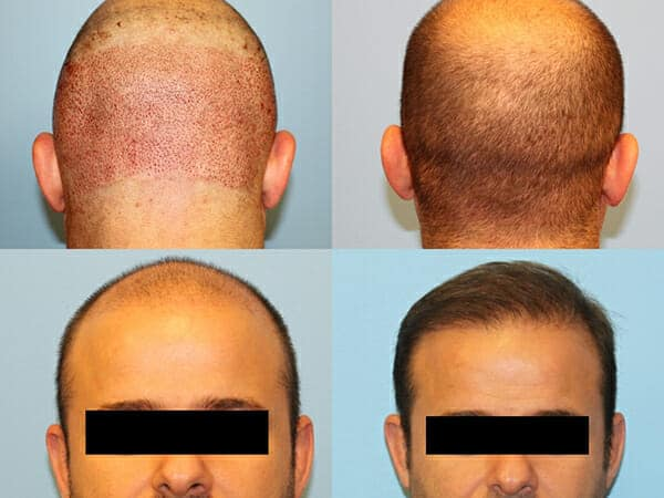 Neograft hair transplants New York City