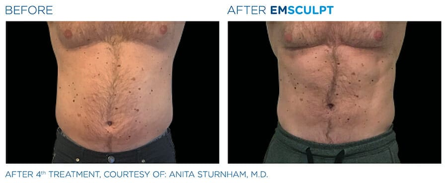 Before & after body slimming New York City