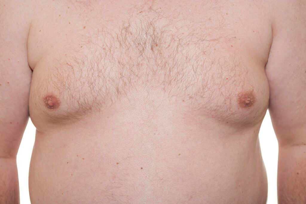 Nonsurgical gynecomastia in New York City