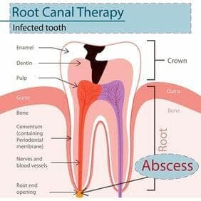 root canal chicago
