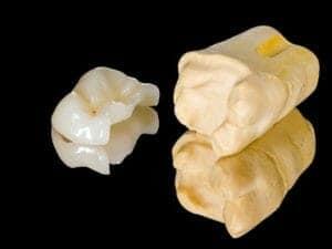 Dental Inlays Chicago