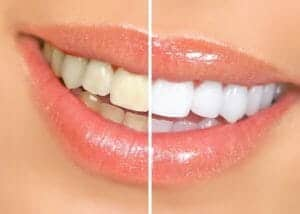 In-Office Teeth Whitening Chicago