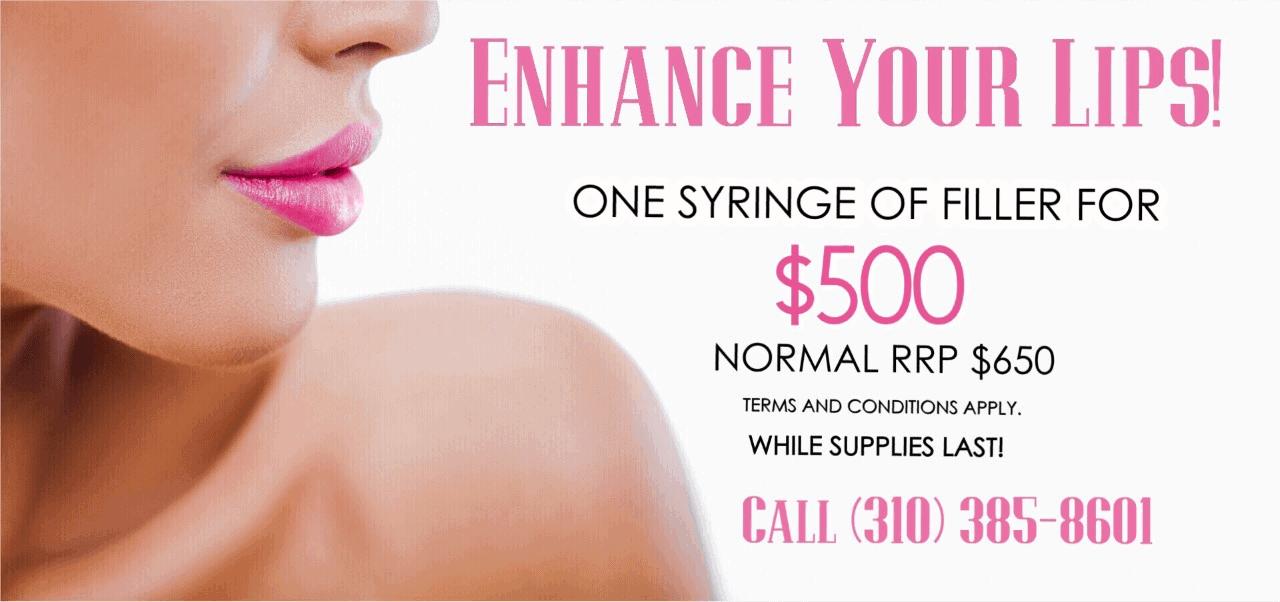 Lip enhancement filler special