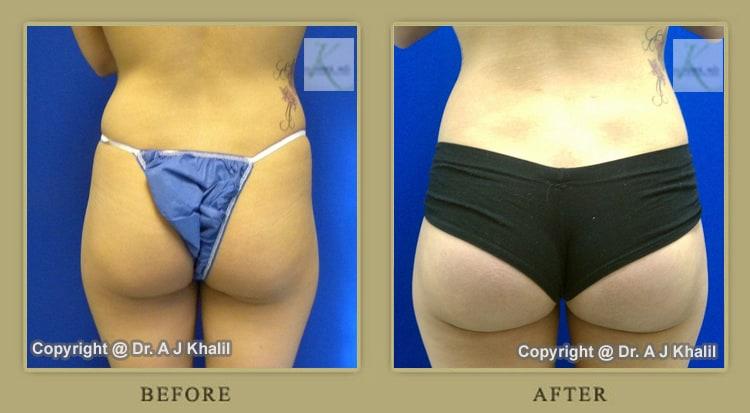 Beverly Hills Butt Augmentation Before & After