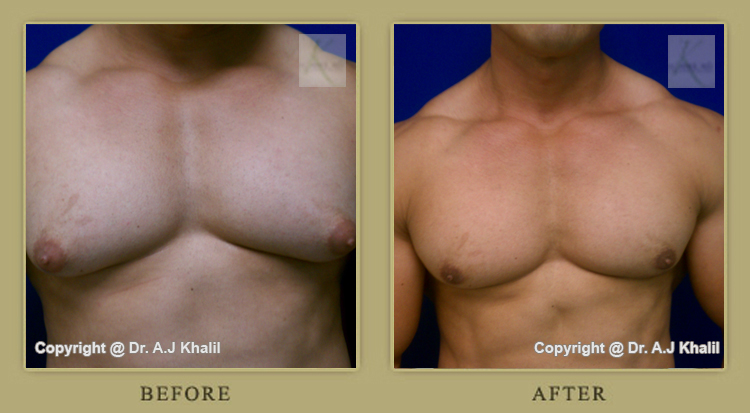 Los Angeles male breast reduction surgery