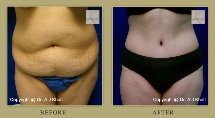 Beverly Hills Tummy Tuck Before & After