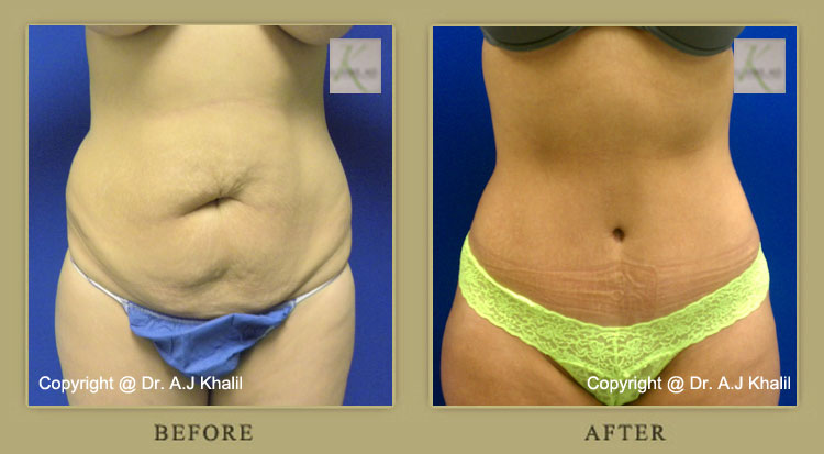 Beverly Hills Abdominoplasty – Before & After