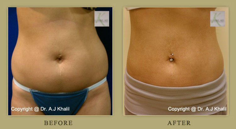 Patient before & after lipo in Beverly Hills