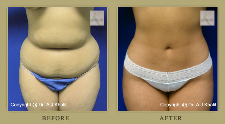Beverly Hills Liposuction Results