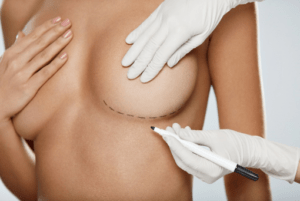 Breast Implant Removal Beverly Hills