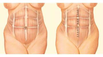 Abdominoplasty: muscle