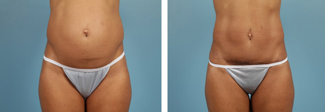 Abdominal liposuction and diastasis repair
