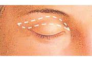 Eyelid lift diagram