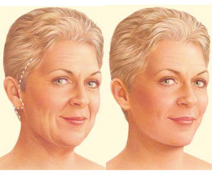 Traditional Facelift