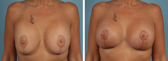 Breast Augmentation Mastopexy Corrective