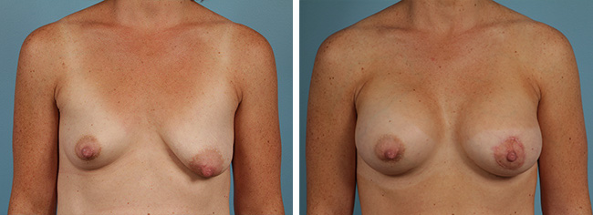 Breast Augmentation Patient with asymmetric breasts