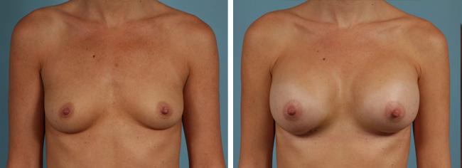 Breast AugmentationBreast Augmentation with 350 cc moderate plus profile implants