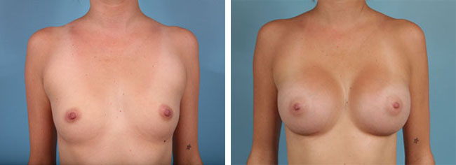 Breast Augmentation350cc Moderate Plus Silicone Gel Implants