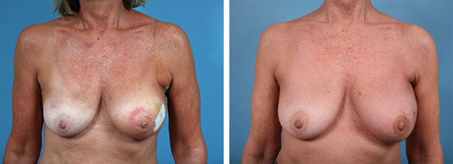 Latissimus Dorsi Flap Breast Reconstruction Chicago