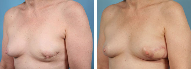 Latissimus Dorsi Flap Reconstruction Chicago
