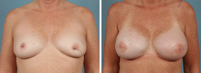 Latissimus Flap Breast Reconstruction Chicago