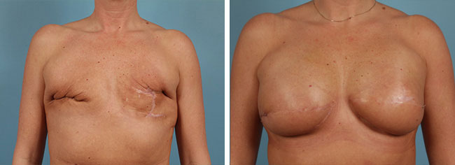 Latissimus Flap Reconstruction Chicago