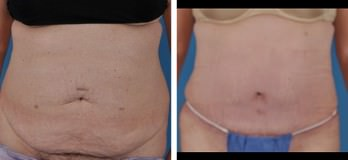 Cleveland, OH Tummy Tuck Patient Before & After Abdominoplasty