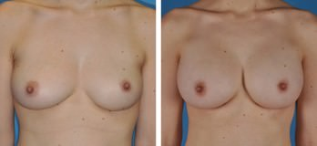 Westlake, OH Breast Augmentation with Implants