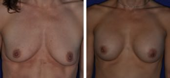 Cleveland, OH Breast Augmentation patient before & after breast implants