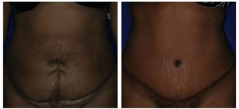 Westlake, OH tummy tuck patient before and after abdominoplasty