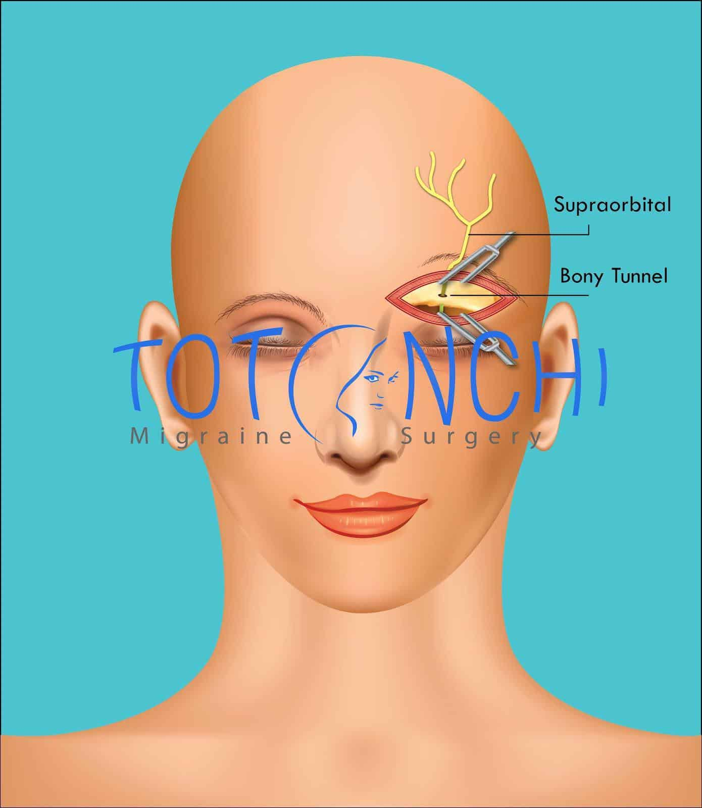 Migraine Surgery in Cleveland