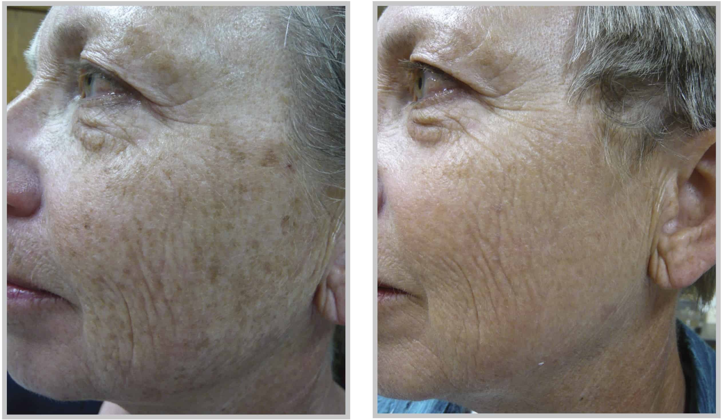 Before & After Broadband Light Age Spot Therapy – Cleveland