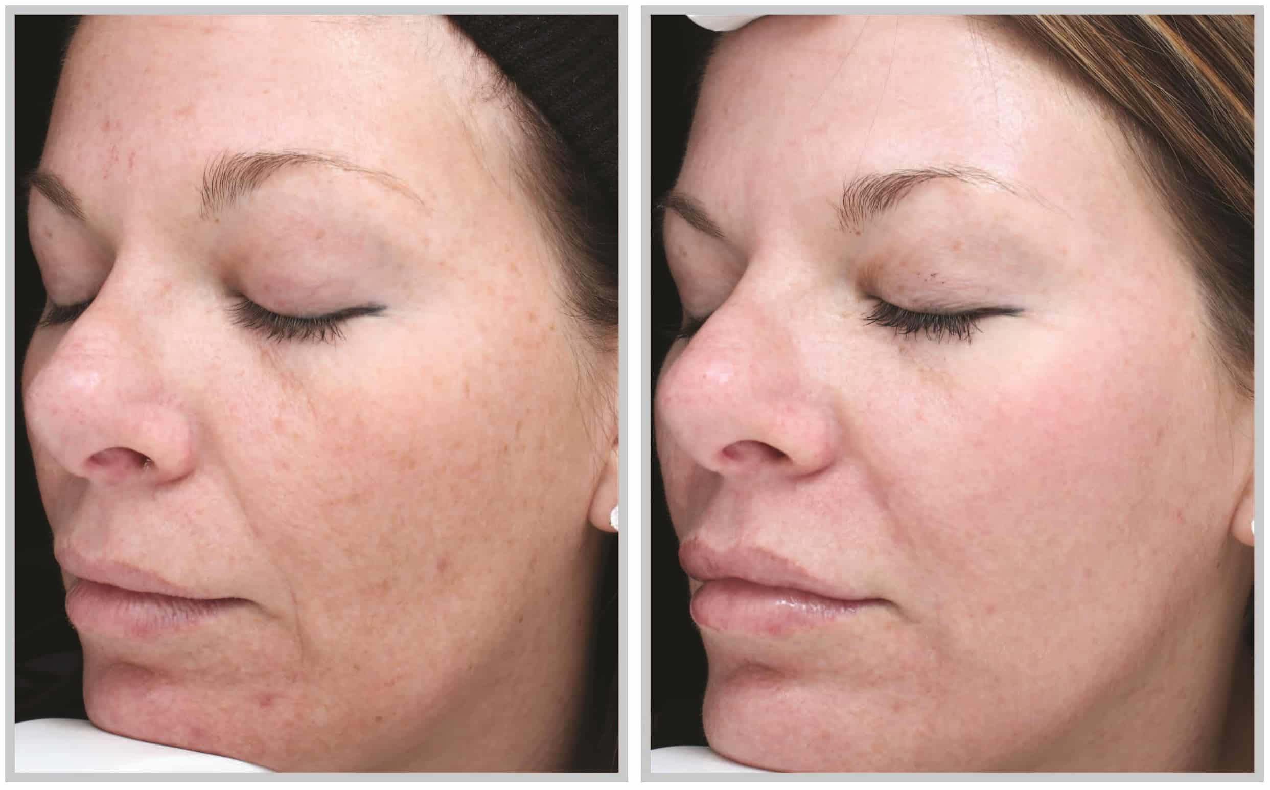 Cleveland patient before and after Halo Skin Rejuvenation