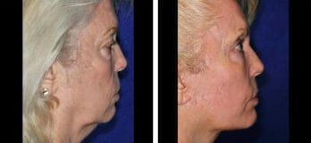 Neck Lift Patients in Cleveland