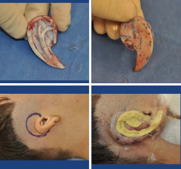 Ear Reconstruction