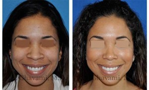 African American Rhinoplasty Patient in Beverly Hills