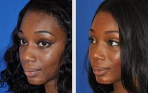 African American Nose Job Patient Photos