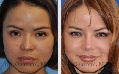 Asian Rhinoplasty Patient in Beverly Hills