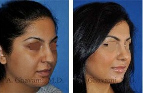 Middle Eastern Rhinoplasty Patient in Beverly Hills