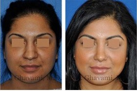 Middle Eastern Rhinoplasty Patient Photos