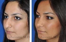 Middle Eastern Nose Job Patient Photos