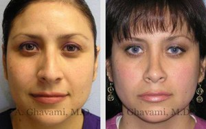 Before After Photos of Hispanic Nose Job Patient