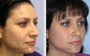 Hispanic Nose Job Patient in Beverly Hills