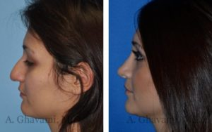 Rhinoplasty Patient Before & After Photos